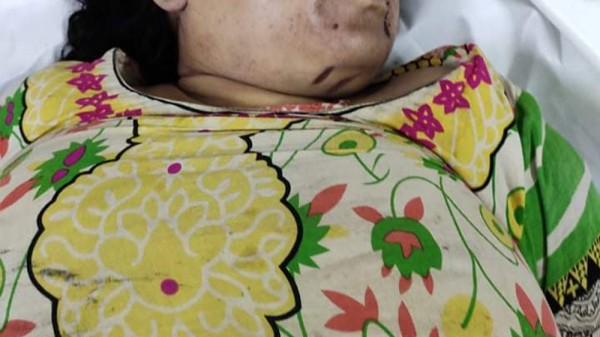 Takerhat Murder Picture (1)  21-8-2020