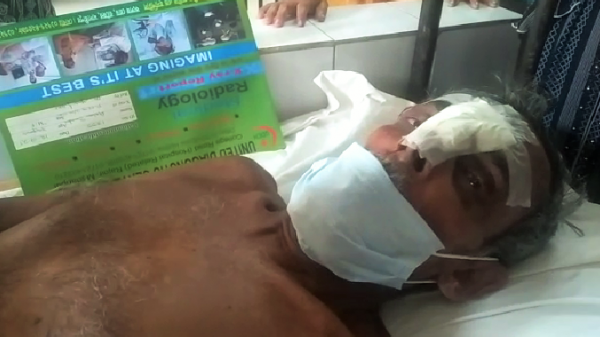 Rajoir Guard Injured by the Thief Pic (1)- 12.07.2021
